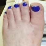 The Front Part of My Left Foot With Polish